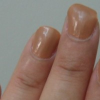My Story: Curved Nails (Warning Graphic Pictures)